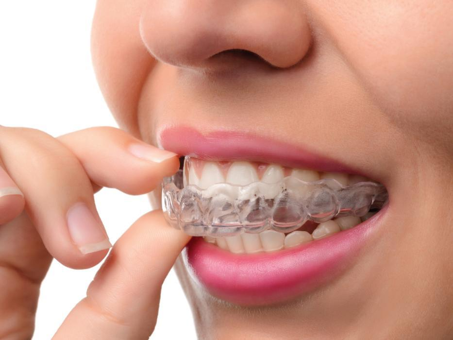 invisalign | greenwich village new york