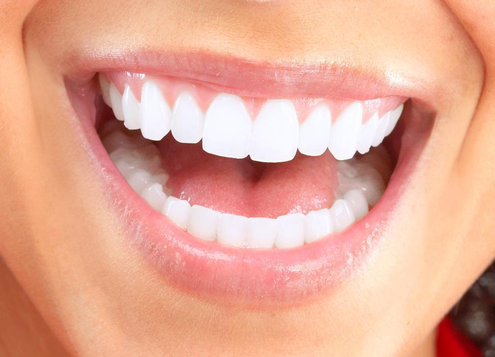 teeth whitening | greenwich village ny