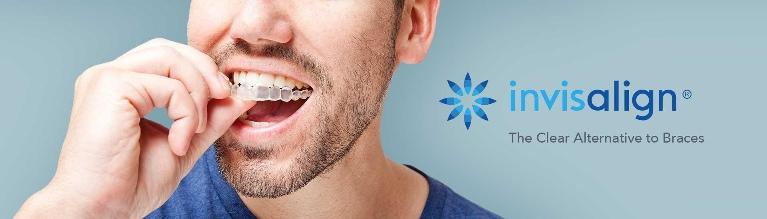 Invisalign | clear braces | west village ny