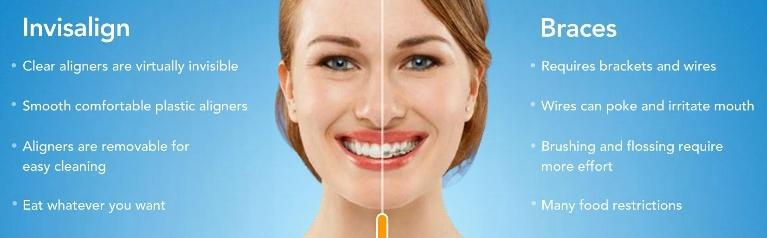 best NYC invisalign provider