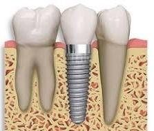 dental implant | west village NYC | greenwich village