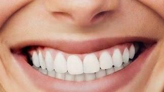 affordable dental veneers NYC | Greenwich Village New York