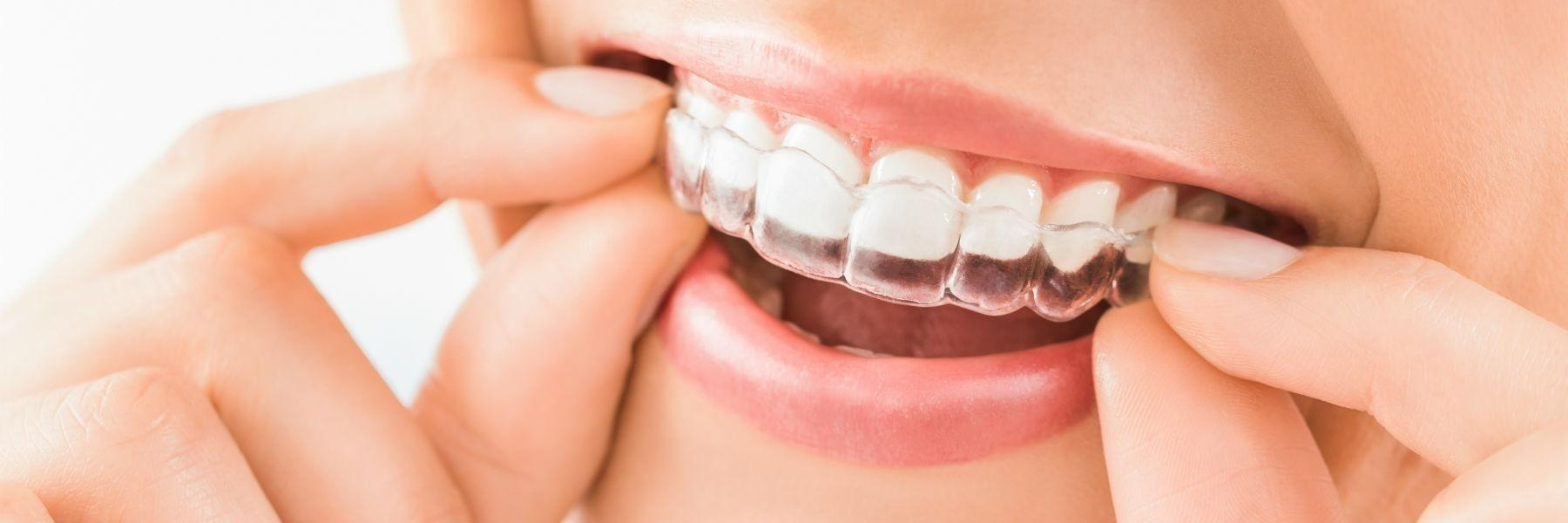 Invisalign clear braces | greenwich village nyc