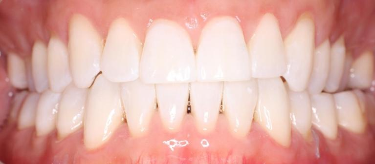KoR-Teeth-Whitening-in-NYC-After-Image